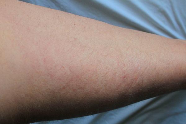 streptokocker i huden